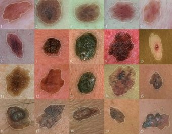 Examples of different types of skin moles